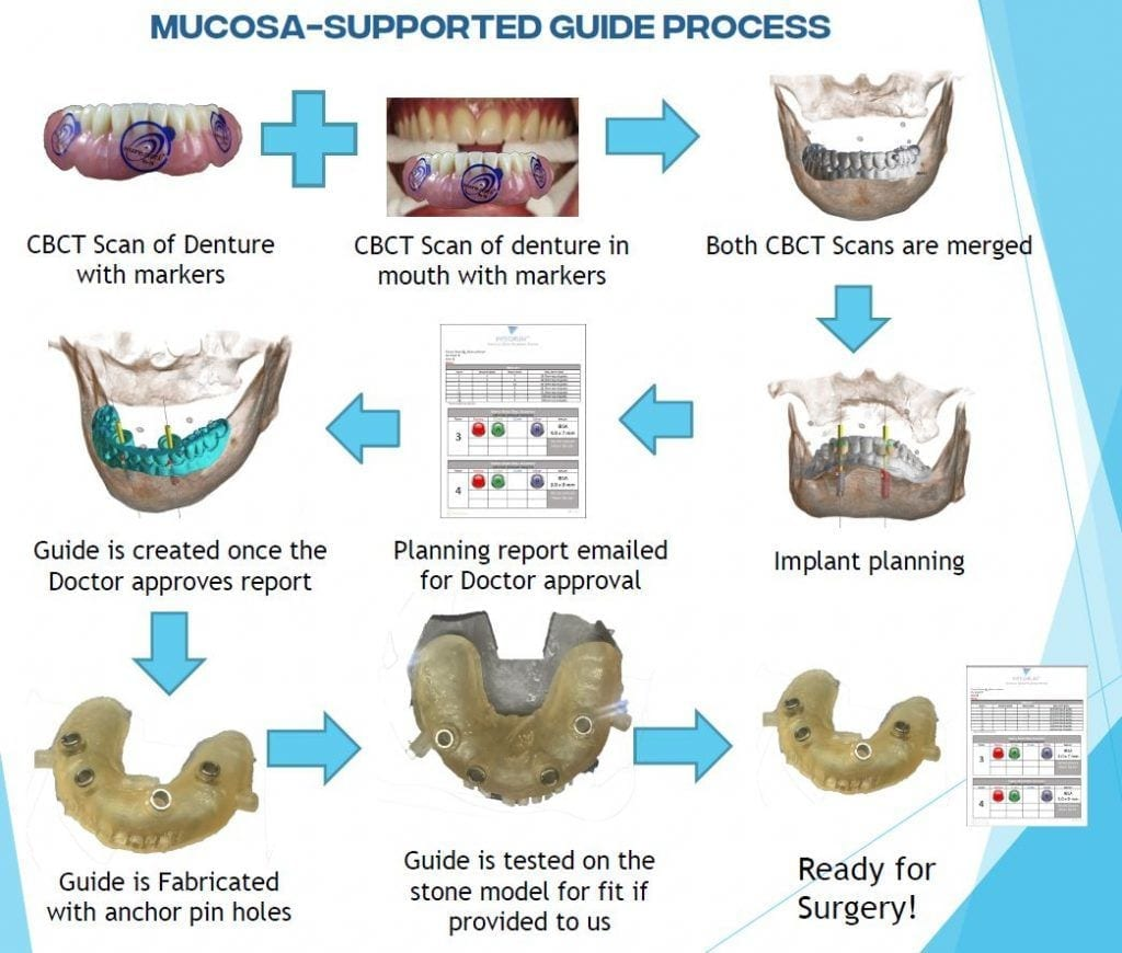 implant surgical guide musosa supported