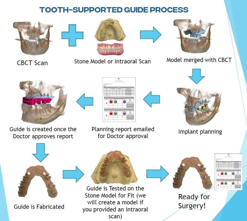 implant surgical guide tooth supported