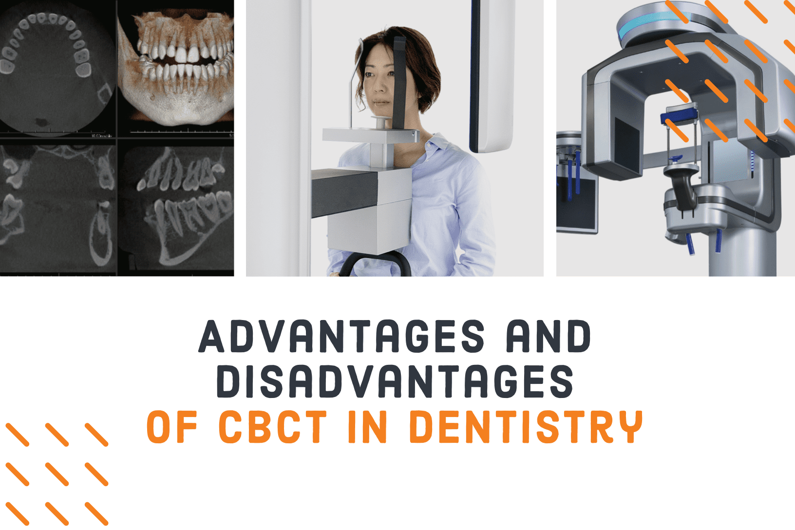 advantages and disadvantages of CBCT in dentistry