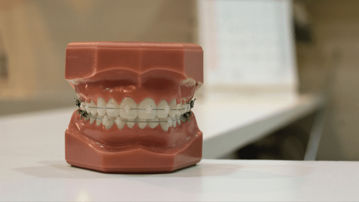 3d printing applications in dentistry: aligners and braces