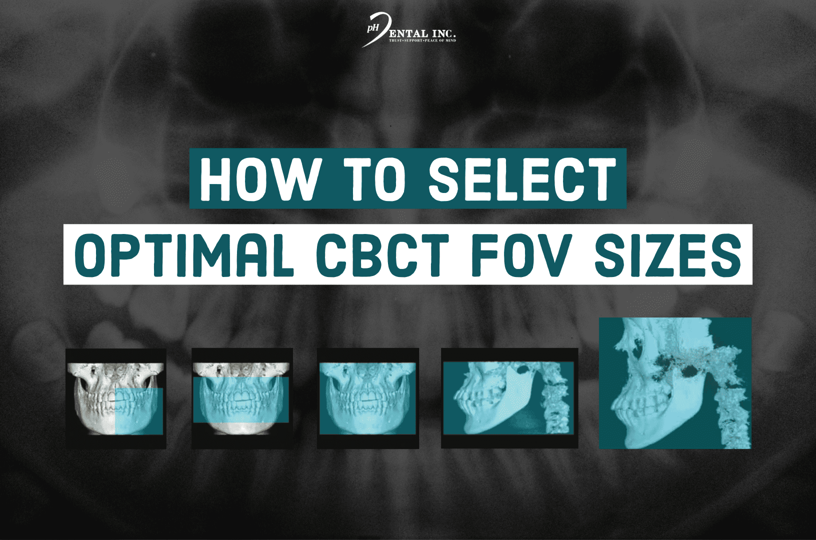 how to select optimal CBCT FOV sizes